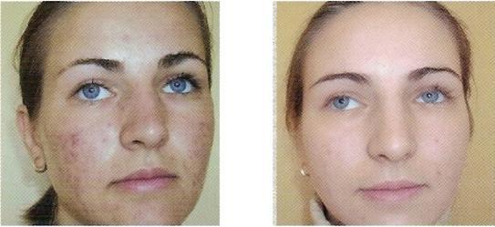 acne2.jpg (23051 bytes)